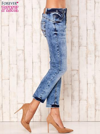 Niebieskie marmurkowe spodnie boyfriend jeans                                  zdj.                                  2